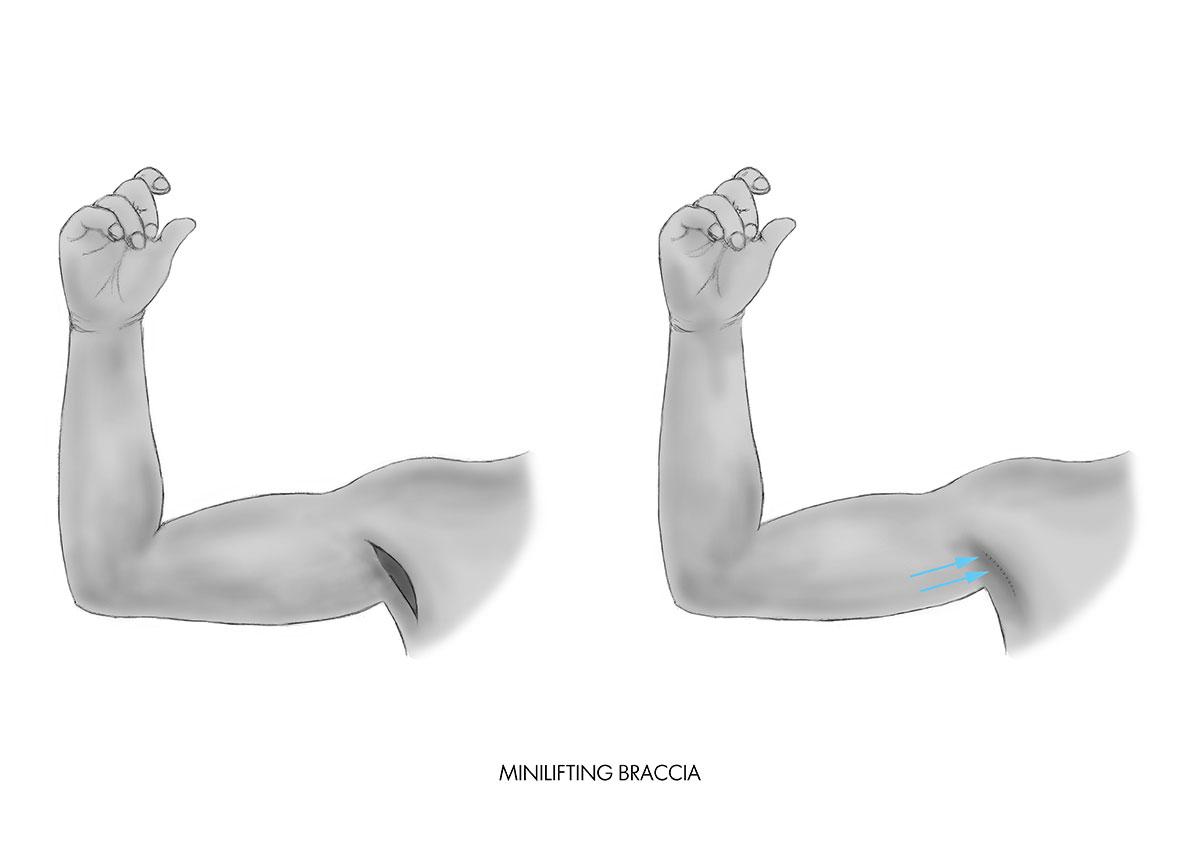 Minilifting della braccia