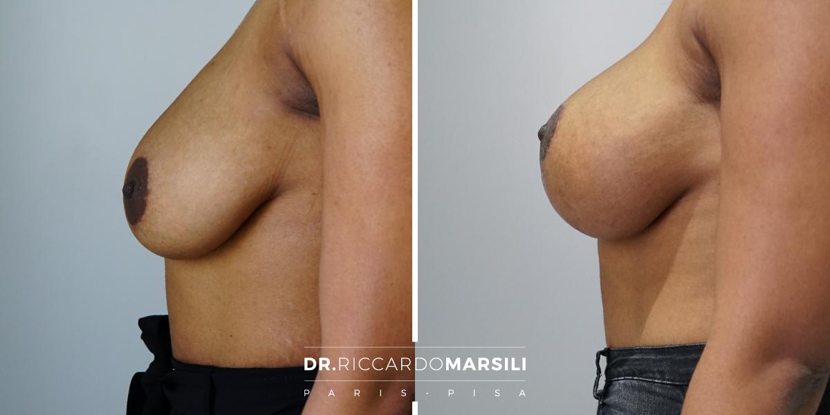 Mastopessi - intervento chirurgico con risultato naturale Pisa Livorno Lucca