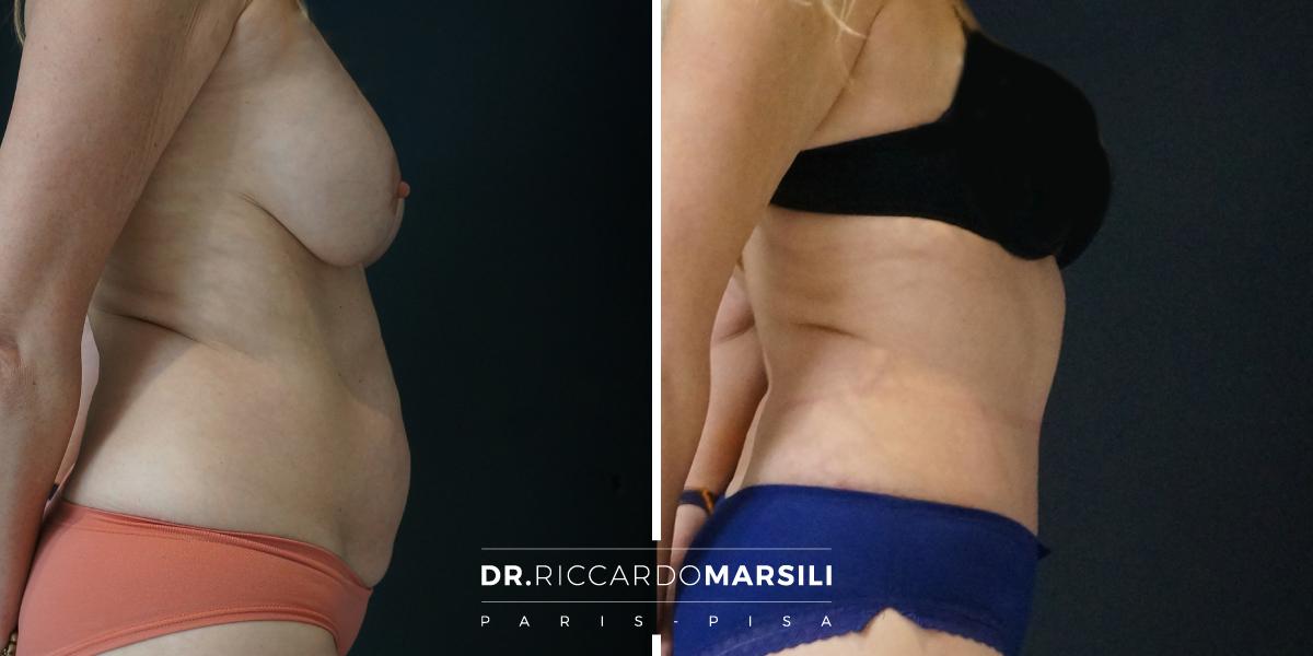 intervento chirurgico per rimuovere il grasso pubico