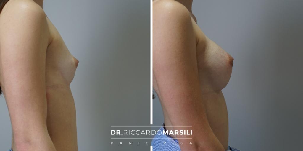 Il dottor riccardo marsili esegue una mastoplastica additiva con una tecnica personalizzata per una rapida ripresa. Riceve a Lucca, Pisa e Livorno.