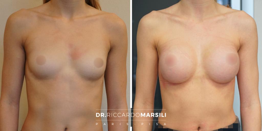 risultato mastoplastica additiva a tre settimane dall'intervento - prima e dopo