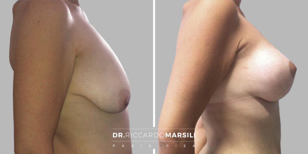 Lifting al seno Dr Riccardo Marsili