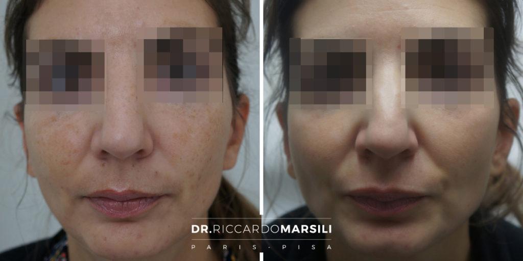 Melasa Dr Riccardo Marsili