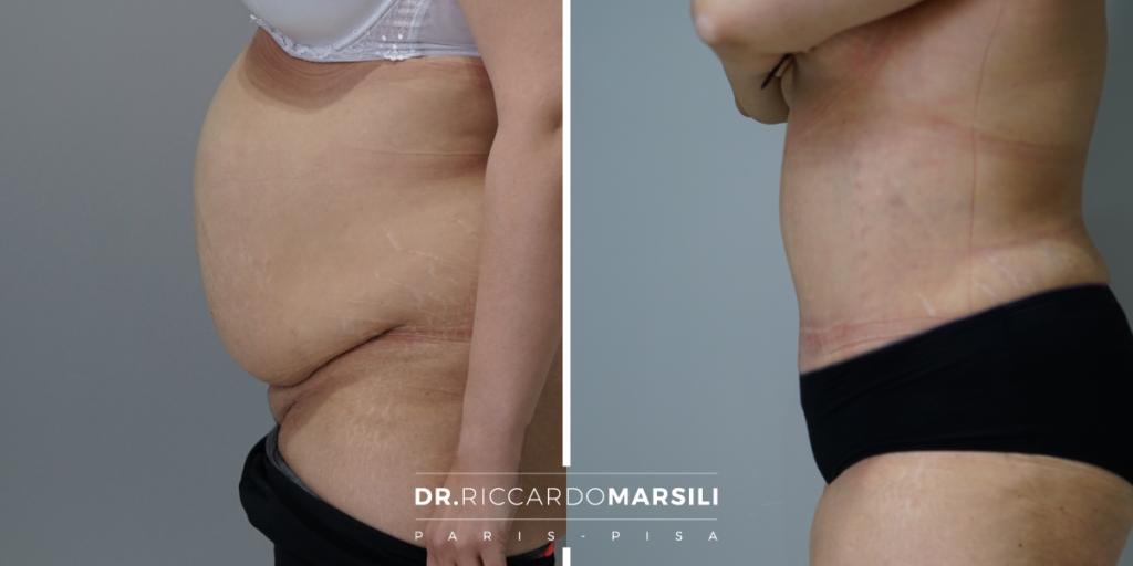 prima e dopo Addominoplastica, come eliminare il grasso addominale.