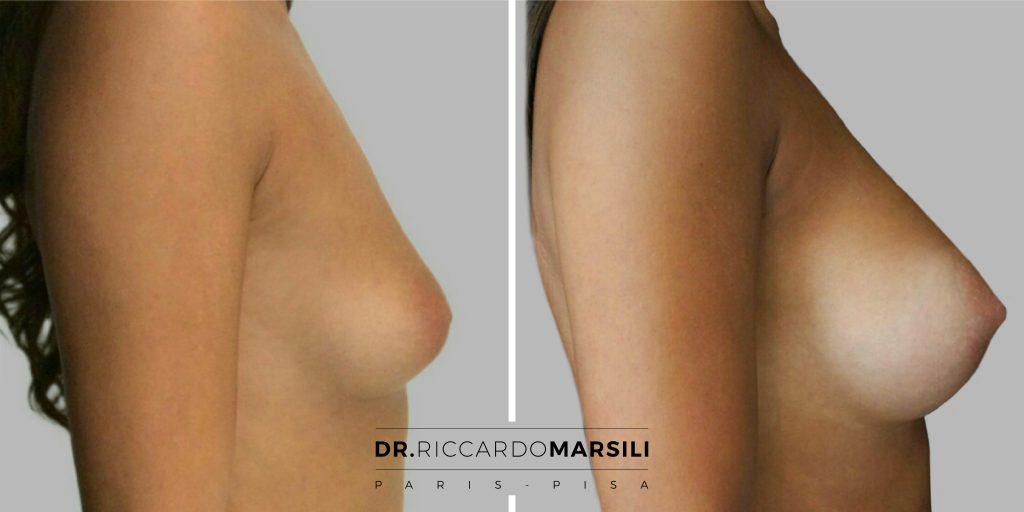 Mastoplastica additiva aumento del seno