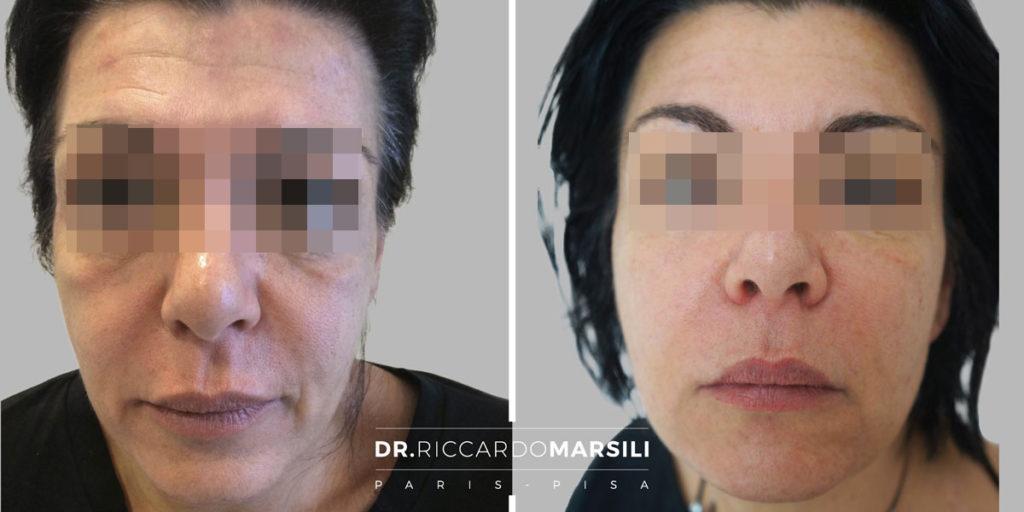 Lifting non chirurgico Baby Face prima e dopo