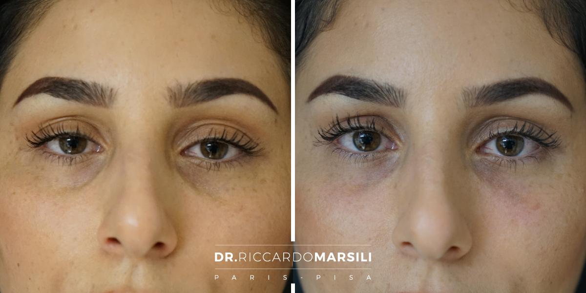 L'iniezione di acido ialuronico per riempire le occhiaie o le palpebre superiori richiede una notevole esperienza chirurgica. Il dottor riccardo marsili riceve a Lucca, Pisa e Livorno.