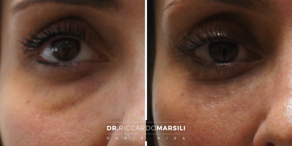 Blefaroplastica Dr Riccardo Marsili