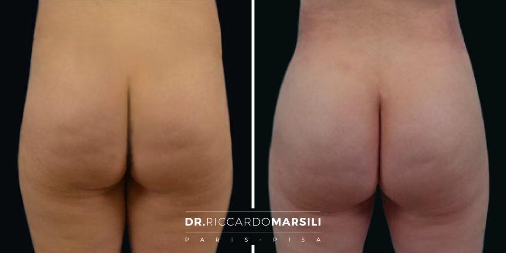 Gluteoplastica Lipofilling Dr Riccardo Marsili