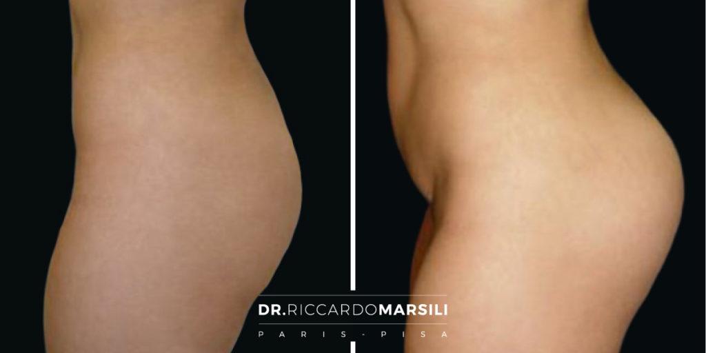 Gluteoplastica Protesi Glutee Dr Riccardo Marsili