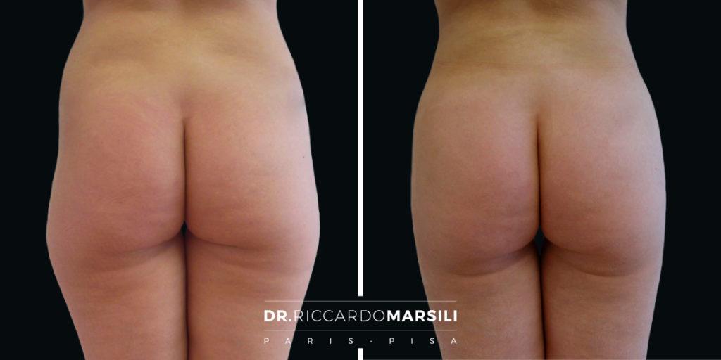 Liposuzione Dr Riccardo Marsili1