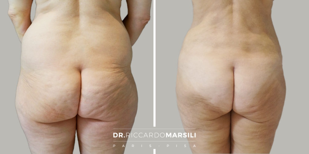 Liposuzione Dr Riccardo Marsili2