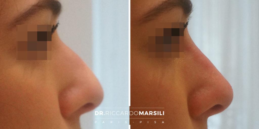 Rinoplastica non chirurgica rinofiller Dr Riccardo Marsili