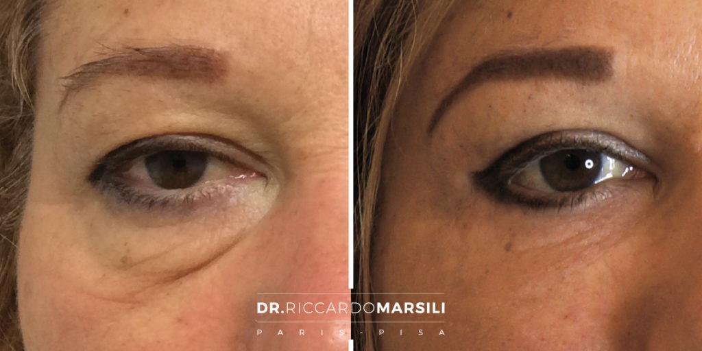 trattamento-blefaroplastica-dr-riccardo-marsili
