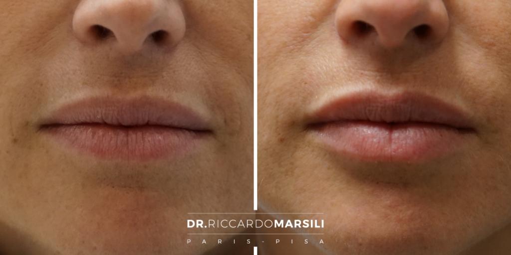 trattamento di acido ialuronico per ripristinare e migliorare i volumi delle labbra