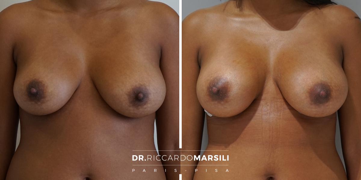 è possibile aumentare il volume del seno con il grasso autologo. Questo trattamento si chiama lipofilling. Vedi il risultato subito dopo l'operazione.