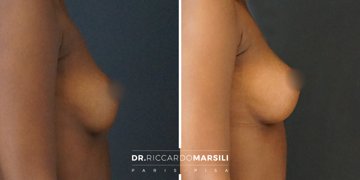 risultato lipofilling al seno effettuato da riccardo marsili