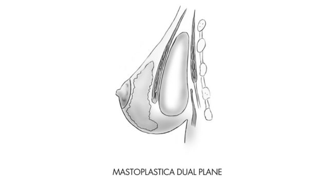 mastoplastica dualplane chirurgia seno